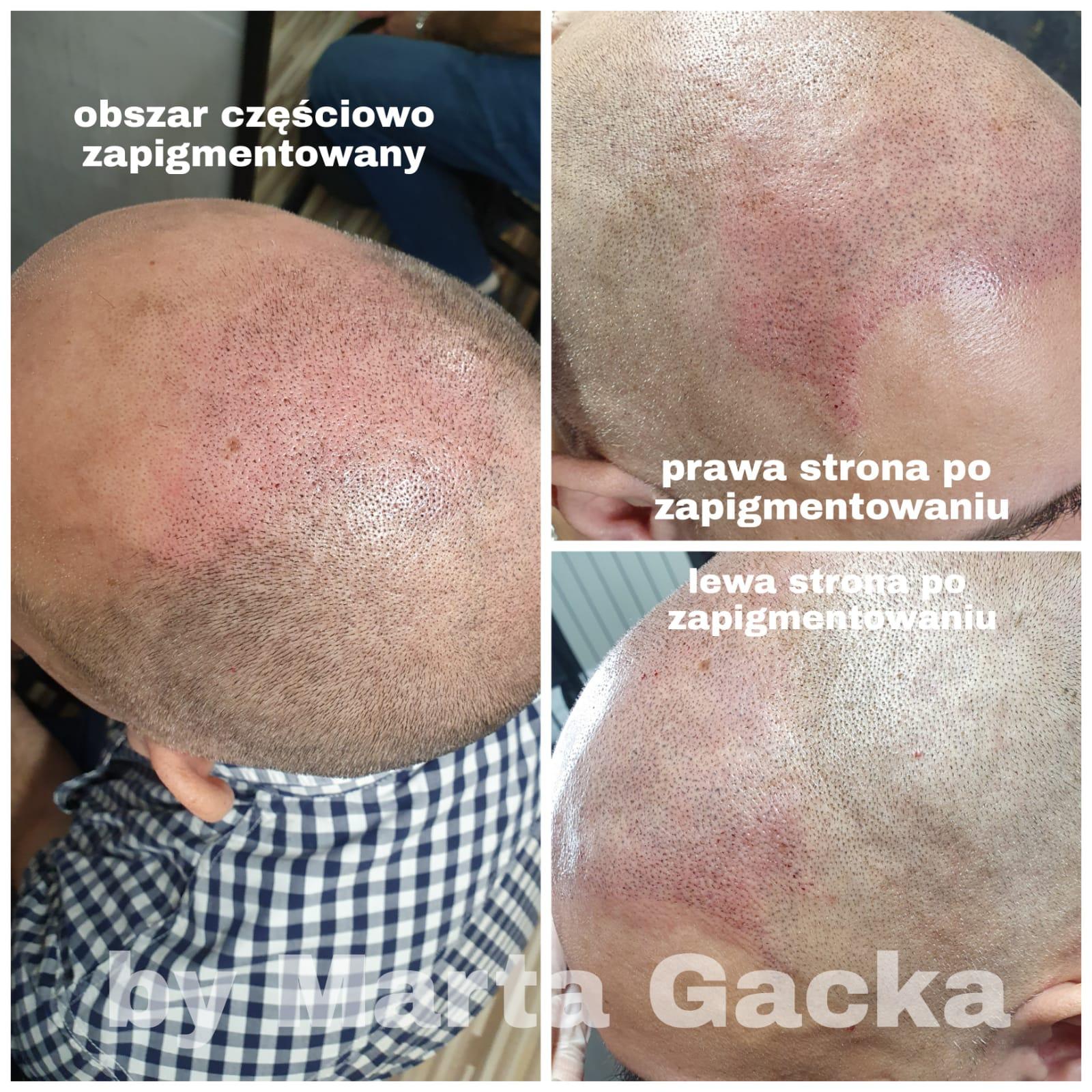 Mikropigmentacja skory głowy Tychy